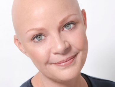 Alopecia Gail Porter